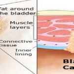 BLADDERCANCER_Hiimpact_Consultants _PVt. _Ltd.